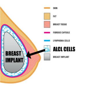 breast implant litigation