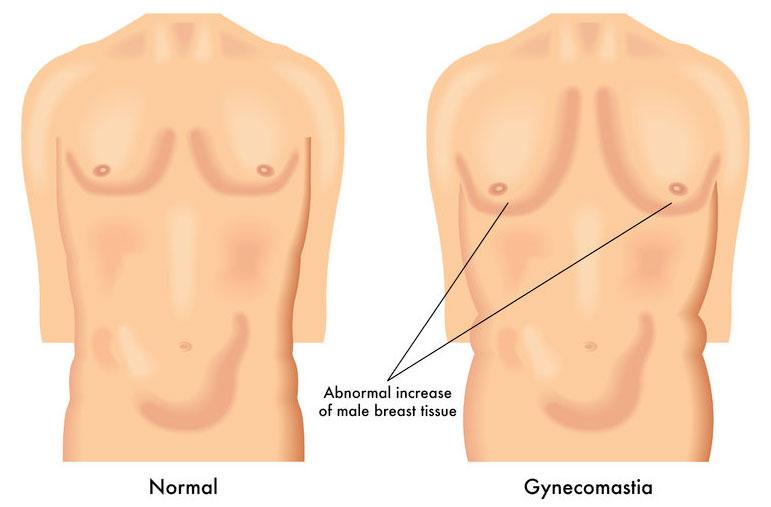Risperdal & Breast Growth In Males